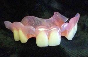 gigi tiruan